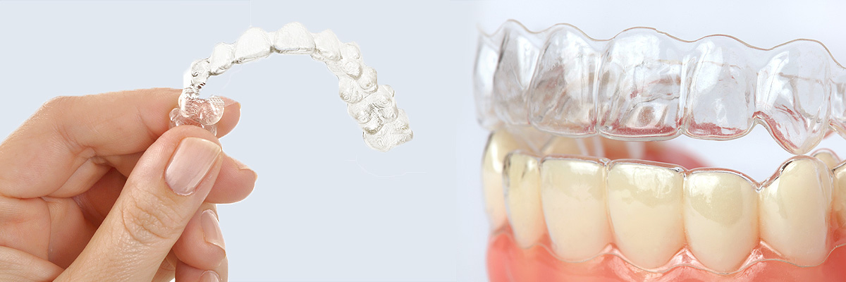 Delray Beach Alternative to Braces for Teens
