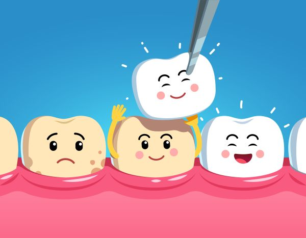 What To Expect When Having Dental Veneers Placed