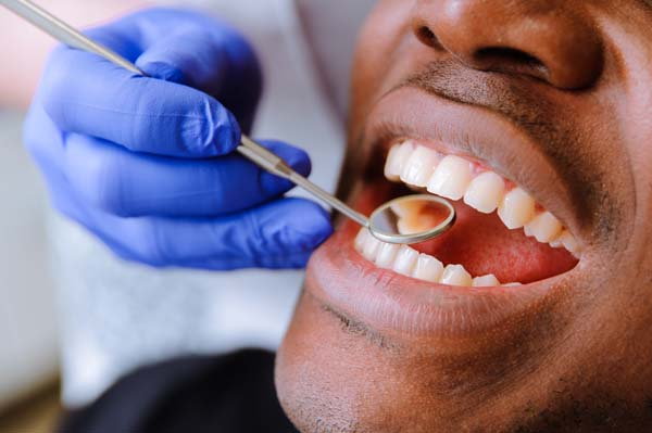 Important General Dentistry Procedures Near Delray Beach, FL